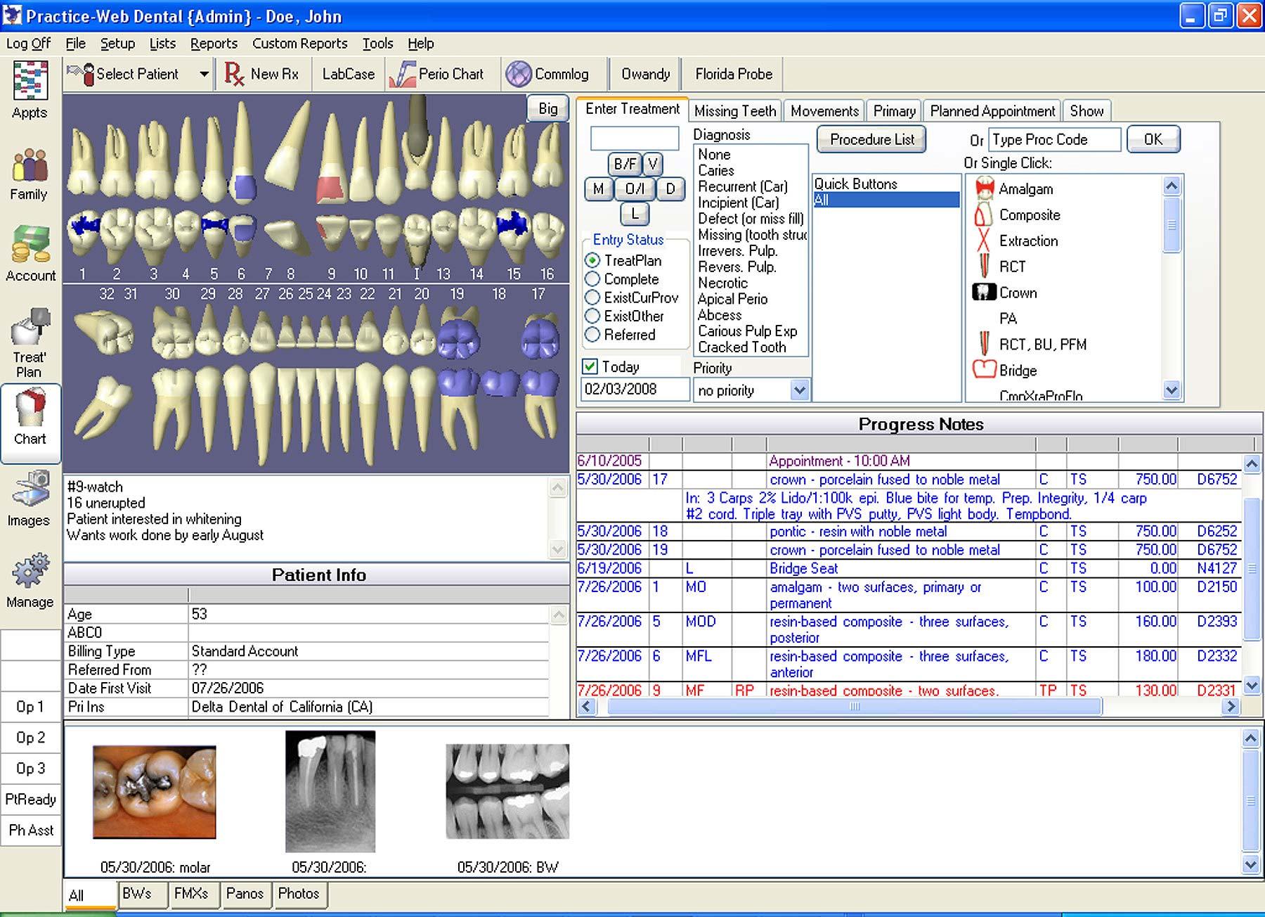 r4 dental software tutorial